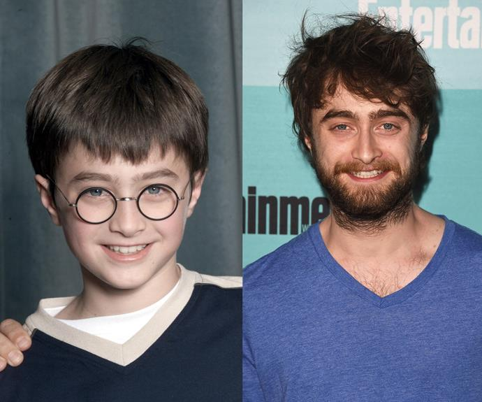 """You're a wizard Harry!"" Hagrid echoes, and little Daniel Radcliffe marches through Platform 9 3/4 away into global popular culture. A lot has happened since then. Including even having a gay sex scene in Kill Your Darlings, riding a horse naked around a stage in Peter Shaffer's Equus, and a rap battle on Jimmy Fallon. You know, the usual."