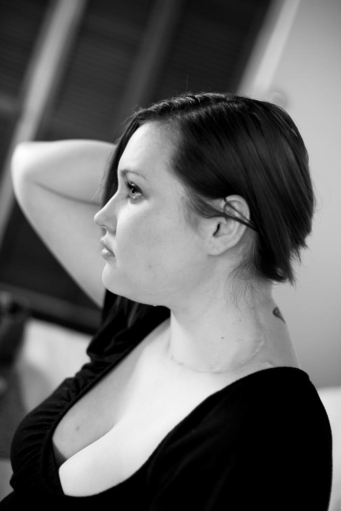 Ashleigh, thyroid cancer survivor. Photography by Georgia Brizuela.