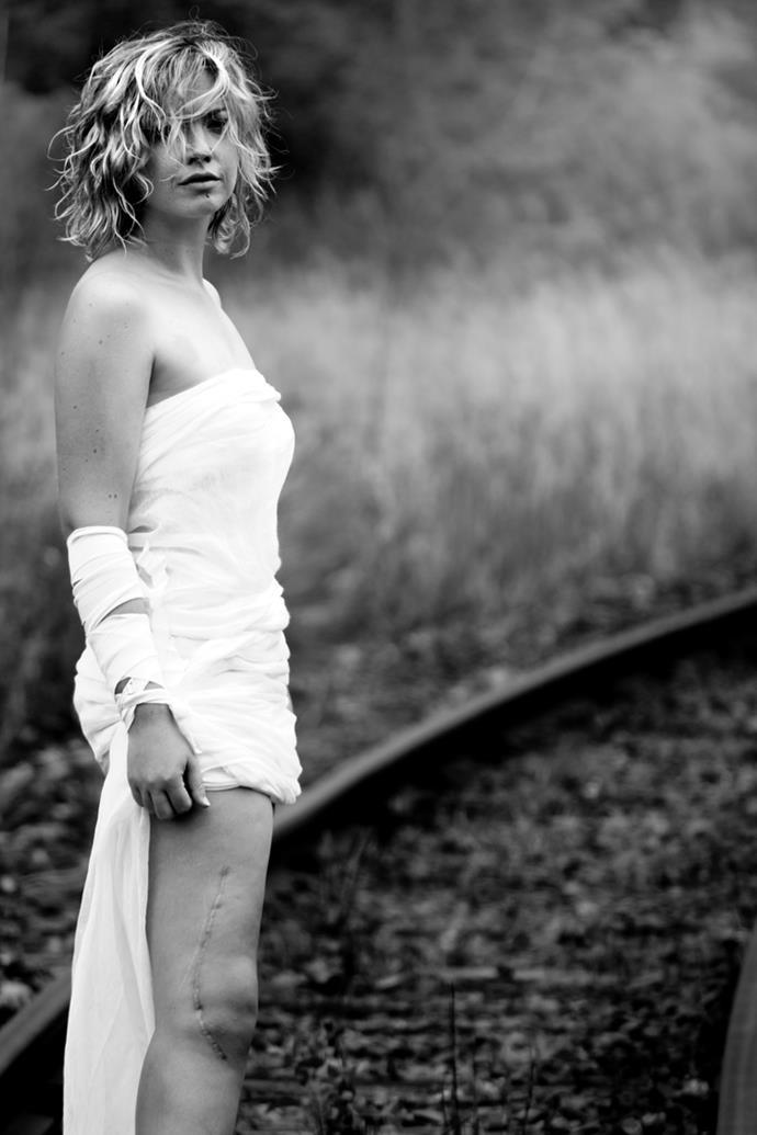 Jasmine, osteosarcoma survivor. Photography by Charmaine Lyons.