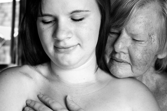 Jas, rhabdomyosarcoma survivor, and Sue, melanoma survivor. Photography by Charmaine Lyons.