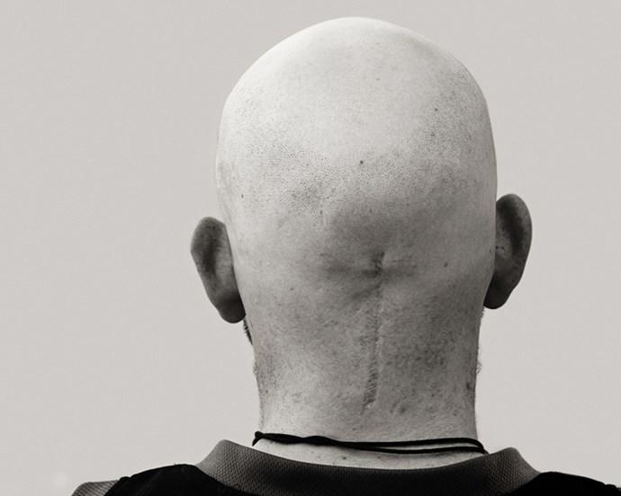 Criag, brain tumour survivor. Photography by Brihannah Rilstone.