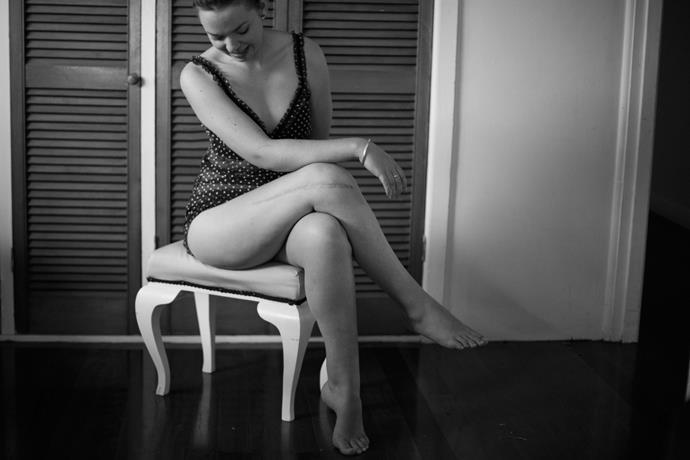 Jasmine, osteosarcoma survivor. Photography by Georgia Brizuela.