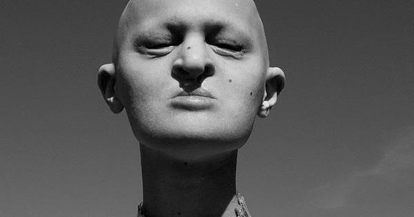 Model with genetic disorder takes on fashion world