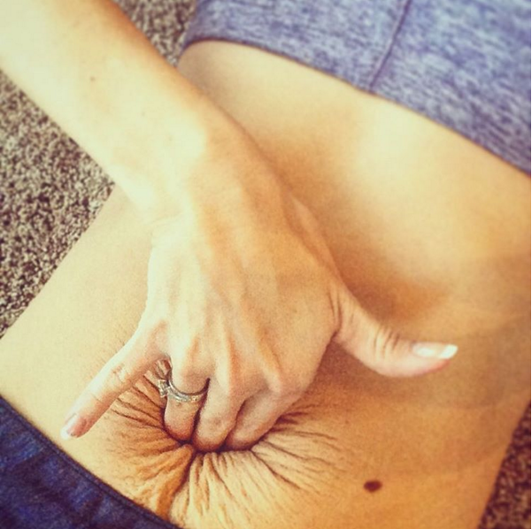 During pregnancy, Stephanie's ab muscles split. She's still working on her core strength today.