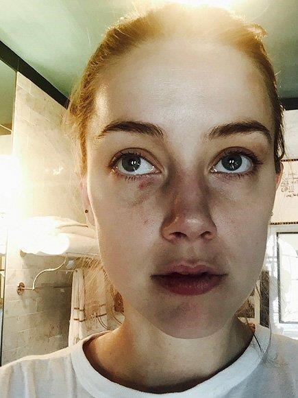 Images of Amber's bruised face as a result of Johnny's alleged abuse.