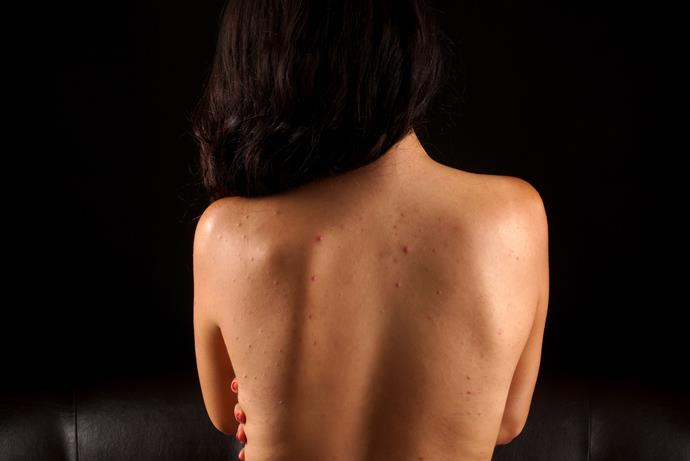 Pregnancy acne is brought on by increased levels of the hormone androgen.