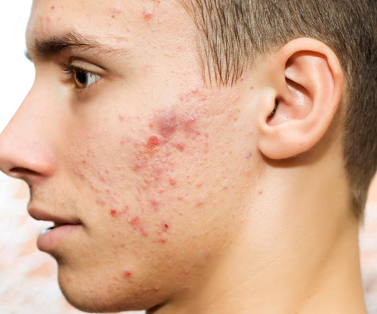 Acne breakthrough: new treatments on the horizon