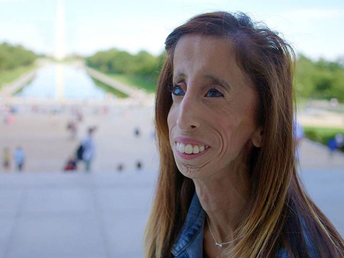 Woman cruelly dubbed 'The World's Ugliest Woman' launches seriously inspiring anti-bullying campaign