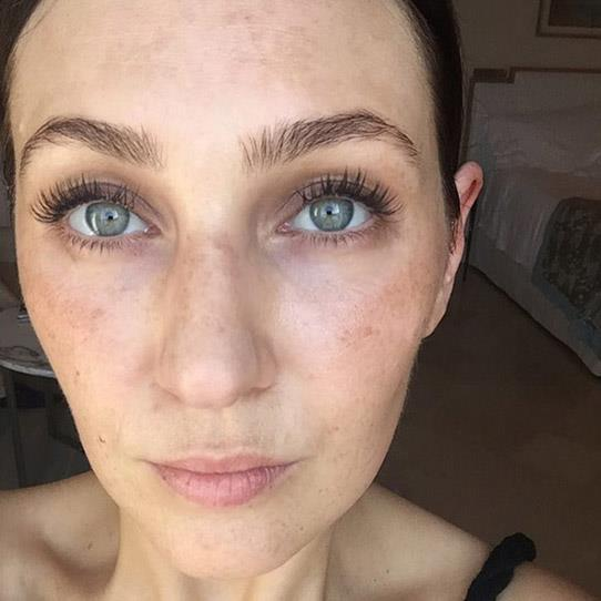 "**Zoe Foster-Blake's** European holiday pigmentation rant is ALL OF US. ""Best thing about beach holidays: beach holidays. Worst thing about beach holidays: friggen hyperpigmentation. (NOT freckles, rather the large clusters of brown.) The worse it gets, the harder it is to shift, and aside of the fact it's the skin under siege/an inflammatory response my belief is that it's uneven skin tone - not wrinkles - that makes the skin look aged. And TERRUST ME, I know all the tricks… hyperpigmentation is the biggest bitch in bitch town."" Her solution? Pigment inhibitors, antioxidants, broad-spectrum physical sunscreen, wide-brimmed hats, peels and microdermabrasion. The struggle is real."