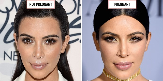 **KIM KARDASHIAN**  April 2015; October 2015