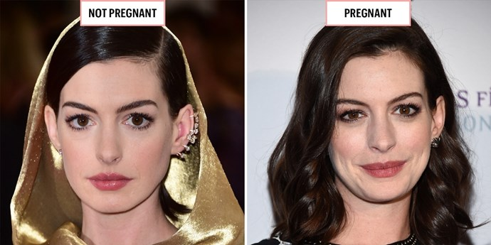 **ANNE HATHAWAY**  May 2015; January 2016