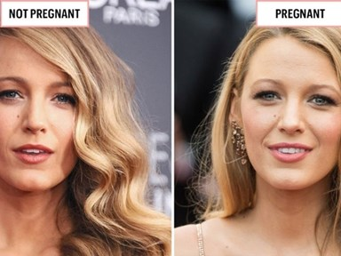 Is pregnancy glow real? A visual investigation featuring 14 celebrities