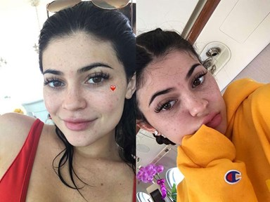 VIDEO: How to fake Kylie Jenner freckles
