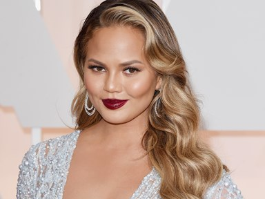 Chrissy Teigen posted a photo of her stretch marks and people are loving it