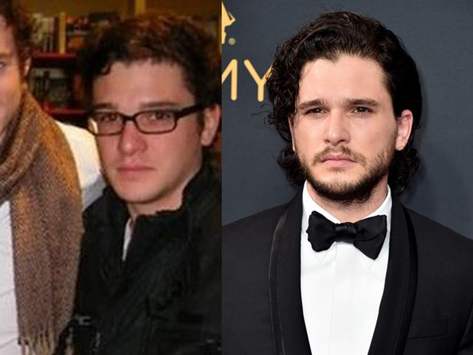 **Kit Harington**