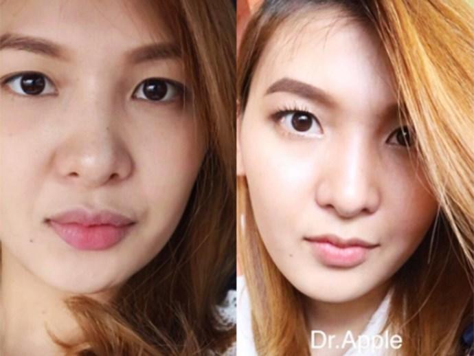 Lip cosmetic procedure