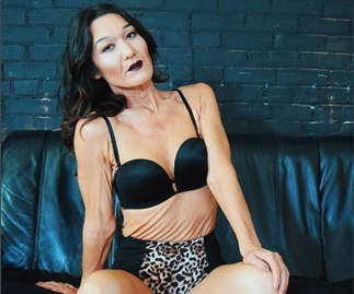 26-year-old model with rare skin condition is changing the modelling game