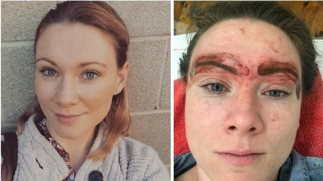Source: *[news.com.au](http://www.news.com.au/lifestyle/beauty/face-body/i-got-my-eyebrows-tattooed-and-it-was-the-worst-decision-ive-ever-made/news-story/ffd078f64492f5b2db9f7691bd05dc75)*