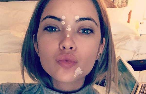 The 5 Best Acne Dots For Getting Rid Of Pimples Overnight