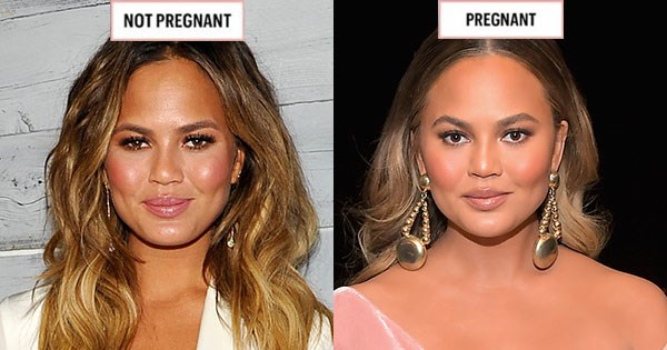 **CHRISSY TEIGEN**   September 2015; November 2017