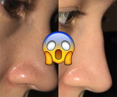 This Reddit user shared her routine to eliminate blackheads for good