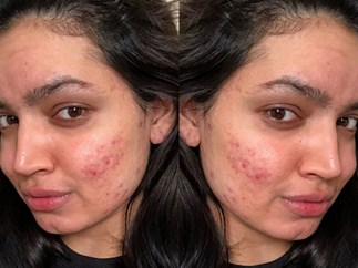 "Major beauty brand apologises to acne beauty blogger after offensive email picks at her ""skin issues"""