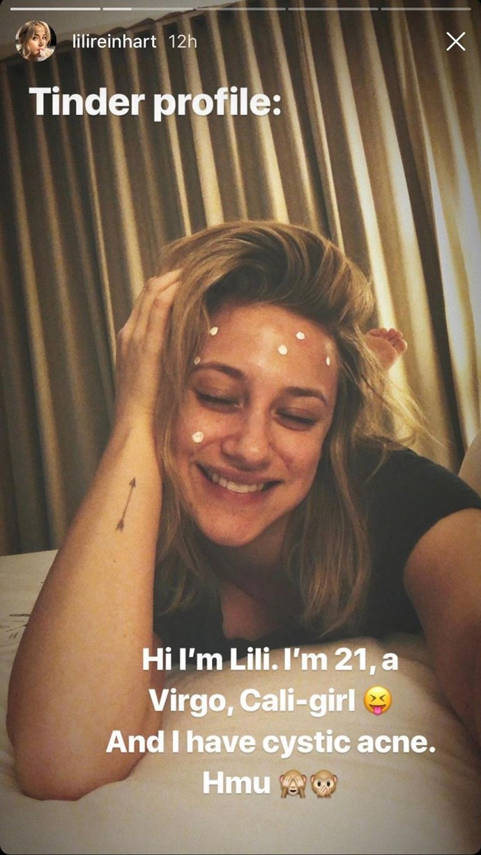 "**Lili Reinhart:** *Riverdale* star Lili Reinhart shared a makeup-free selfie on her Instagram Story stylised as a Tinder profile. ""Tinder profile: Hi I'm Lili. I'm 21, a virgo, Cali-girl. And I have cystic acne. Hmu,"" she wrote. The star has opened up about her struggles with acne since high school before. ""Every time I have a big cystic pimple or something, it very much triggers that part of me where I don't want to look at myself in the mirror,"" she told [*Teen Vogue*](https://www.teenvogue.com/story/lili-reinhart-st-ives-interview