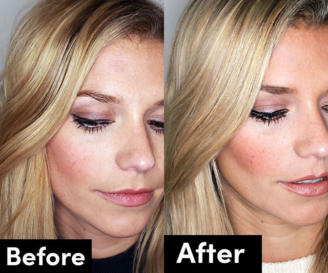 9 things I learnt from having botox in my 20s...