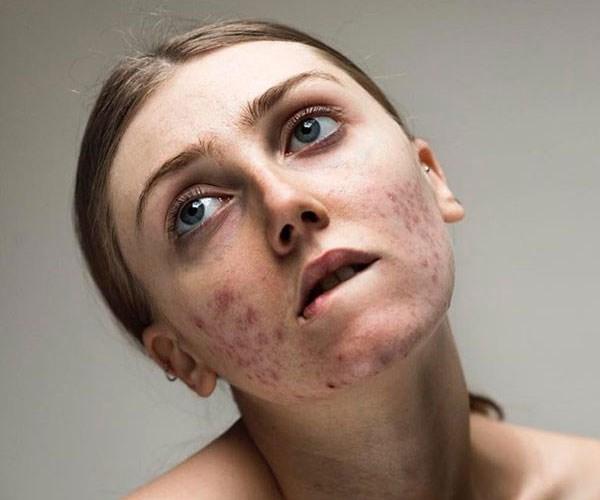 louisa northcote free the pimple