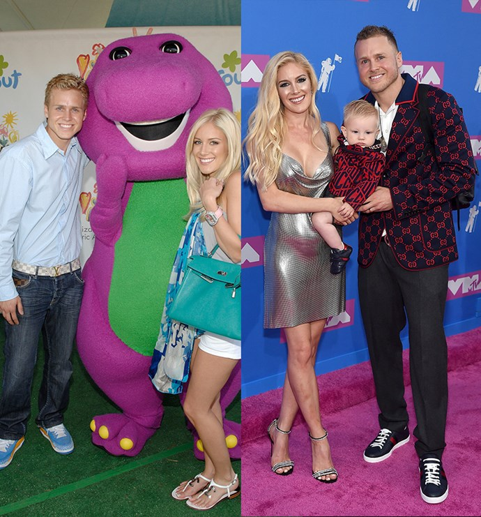**Spencer Pratt Before and After** <br><br> Oh Spencer… Boy did we hate you on *The Hills*. He was the wedge that drove Heidi and LC's into the gutter and we may have forgiven him since then, but we will never, *ever* forget. Spencer is now married to Heidi and they have a baby boy, named Gunner, together. His favourite past times are rubbing crystals on his body and looking like a man possessed.