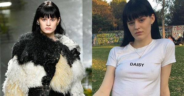 **Hannah Elyse**   <br><br> **Major designers they've walked for: ** Louis Vuitton, Rodarte, Moschino, Rochas, Salvatore Ferragamo, Roland Mouret, Jeremy Scott <br><br> **Campaigns they've starred in: ** Kenzo autumn winter '17 <br><br> **Instagram: ** [@hannahxelyse](https://www.instagram.com/hannahxelyse/?hl=en), 28k followers