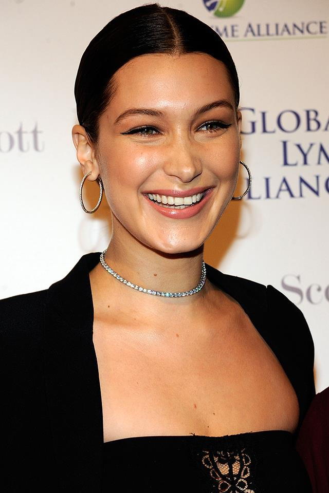Bella smiling at the Global Lyme Alliance's 2016 United For A Lyme-Free World Gala in October 2016.