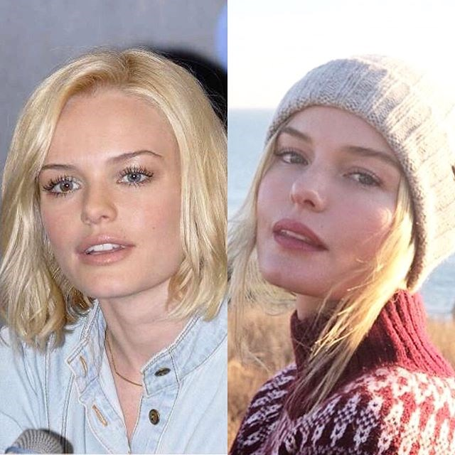 "***Kate Bosworth*** <br><br> ""I have seen the 10 yr challenge everywhere and it got me to thinking—what is the actual challenge? To look the same? Better? Different? <br><br> For me, it was to look back on a human in her 20's (left photo) wide-eyed, & living in a ton of fear because I felt no control over my life. I had neither the experience nor the tools to really understand myself. I started out in this industry at 14 years old—quite by accident. Anyone who follows me from middle school or high school will tell you—I was (and still am) a normal kid from a small town. But I love telling stories and working in a community who literally work their asses off right up until the moment someone yells ""ACTION!"" in an attempt to make magic (which is what I believe great cinema is—magic). But that girl on the left was not prepared for the wacky / cruel / overwhelming attention fame can bring, and I truly did not know how to process any of it. I internalized the fear, did not communicate much, and certainly did not voice my extreme vulnerability, as I felt it was a weakness. Regardless of the road travelled, the 20's can be weird and confusing. You are developing. This requires patience and self-care: both qualities I admittedly did not have at the time. I kind of barreled through the decade in an attempt to fake looking cool & confident (I wasn't) + feel less pain. <br><br> Ok, so I am now 36—and I often get asked from journalists (🙄) how do I feel about ageing (as if this is a bad word—we need to work to change this perspective, but that's a different post). How do I feel about evolving from fear and learning to live through love? AWESOME. Aware there are always growing pains in life, but what a miracle to be alive. The woman on the right feels grateful to create art in different ways, finds strength in vulnerability - and beyond anything else—she knows love is everything. Also, ""cool & confident"" to me now is goofy, kind, and honest. <br><br> So... Go easy on your hearts now 20 yr olds—you're not supposed to have it figured out. Find mentors, lean on those you trust who have more life experience. ❤️ Thanks for this challenge, here's to the next 10. (I hear the 40's are even better ;)"" <br><br> *Image: [@katebosworth](https://www.instagram.com/p/BstEQK5n8WN/