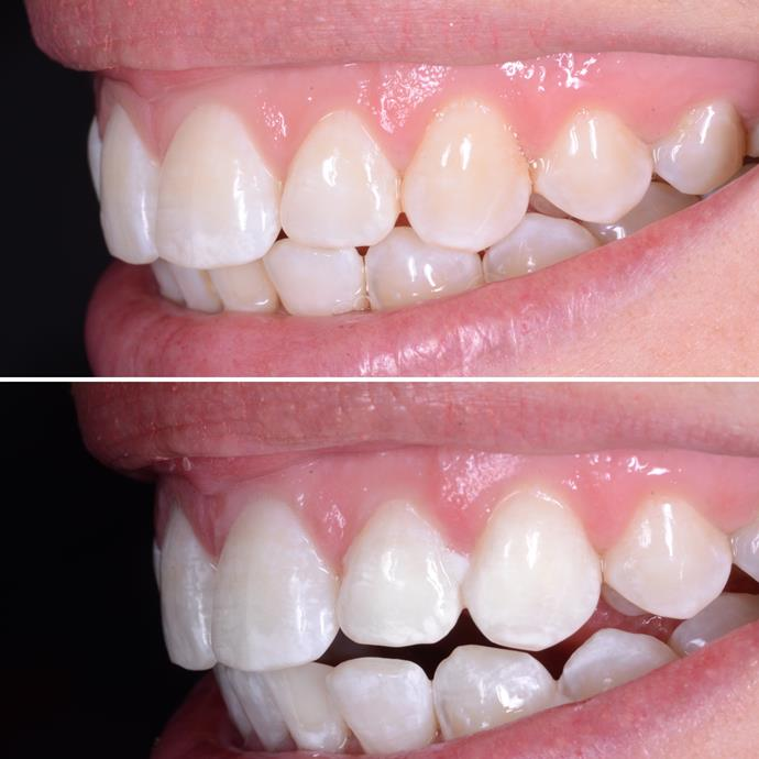 "Top picture: before the Philips Zoom treatment. Bottom picture: after the Philips Zoom treatment. Pictures: [Dental Lounge in Sydney](https://dentallounge.com.au|target=""_blank"")."