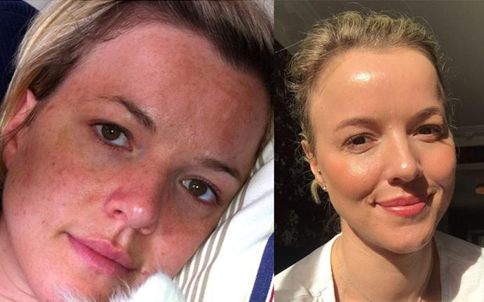 Isabella Loneragan before (left) and after (right) treating her melasma.