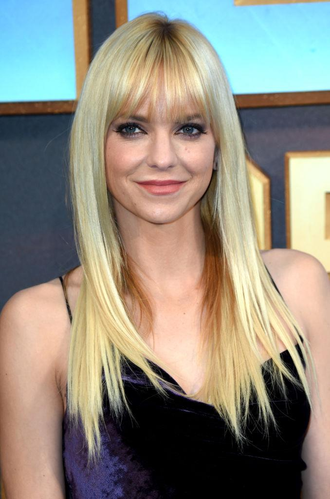 "**Anna Faris**<br><br>  The comedienne wrote frankly about her experience trying lip injections (and getting a breast augmentation) in her 2017 memoir, [*Unqualified*](https://fave.co/2yHVTEh|target=""_blank""