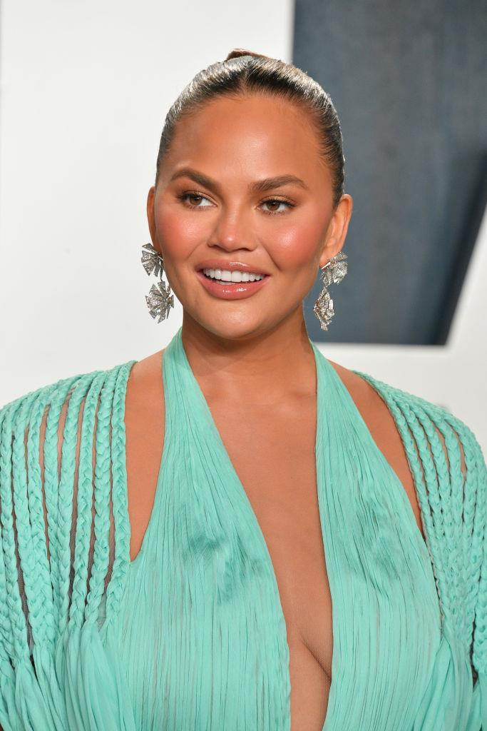 "**Chrissy Teigen**<br><br>  Refreshingly candid when it comes to the work she's had done, Teigen has spoken about the procedures she's had on multiple occasions (including the [Botox](https://www.buzzfeed.com/michelleno/chrissy-teigen-botox-armpits|target=""_blank""