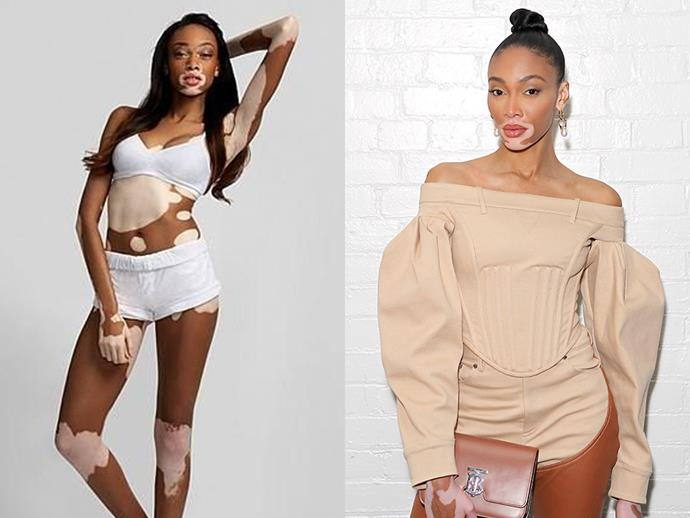 ***Winnie Harlow*** <br><br> After being scouted by Tyra Banks for the 21st season of *America's Next Top Model*, Winnie Harlow's career went from strength to strength. While she didn't win her season, the model's career continues to grow, leading her to be featured in a variety of magazines, walking in the 2018 Victoria's Secret fashion show, and even became a part of Beyoncé's visual album 'Lemonade'.