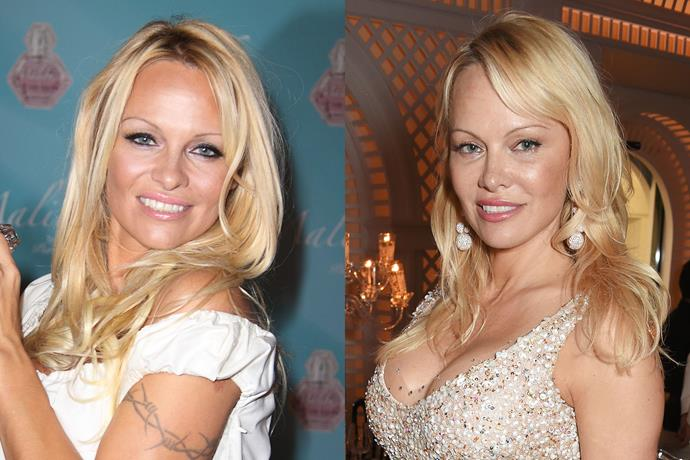 **Pamela Anderson** in 2009 and 2017.