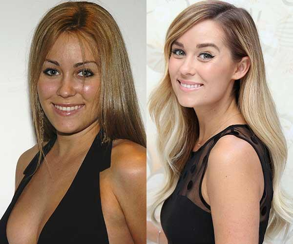 **Lauren Conrad** <br><br> We were first introduced to Lauren as 'LC' on *Laguna Beach*. Back then, she fell victim to the same trap as us, plucking her eyebrows within an inch of their life.