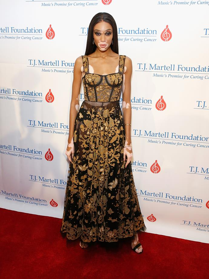 Winnie Harlow at the T.J. Martell 42nd Annual New York Honors Gala at Guastavino's, October 2017.