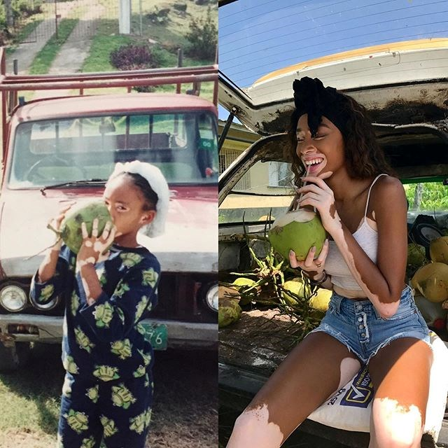 """***Winnie Harlow*** <br> """"#10yearchallenge even tho it's more of a before and after or #tb lol #JamaicanGyal"""" <br><br> *Image: [@winnieharlow](https://www.instagram.com/p/Bsn0DQylY8o/