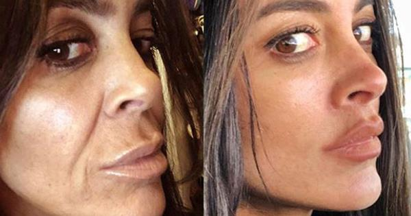 What Is A Deep Plane Facelift? Inside The Plastic Surgery