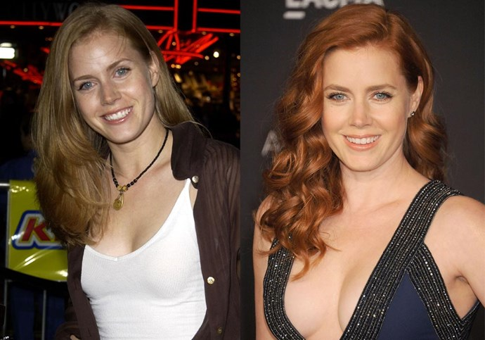 ***Amy Adams*** <br><br> Adams might be strawberry blonde, but she began to dye her hair from her natural colour to a darker red in the mid-2000s. Since then, she's never looked back, except switching it up for the occasional film role, i.e. her Oscar-nominated performance in 2018's *Vice*. If you don't remember, Adams also showed off remarkably different blonde tresses in 2005's *The Wedding Date*.