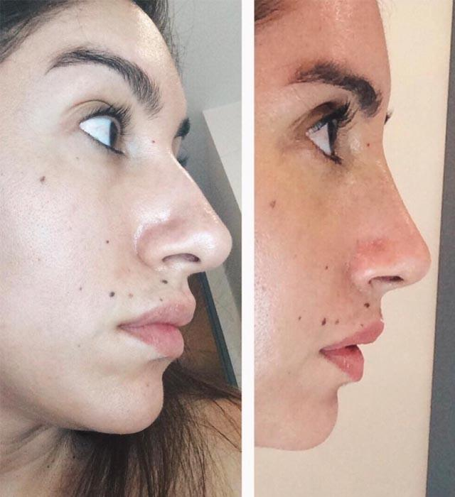 """**Jen Atkin** <br><br> """"Nose were the days,"""" Atkin captioned this throwback shot of her before-and-after surgery transformation."""