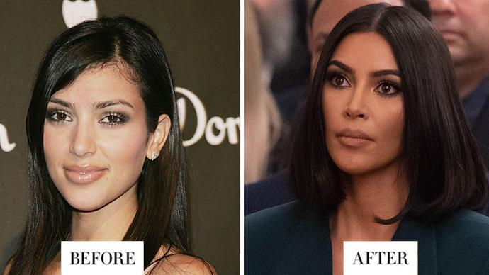 **KIM KARDASHIAN**<br> The beauty mogul always had thick eyebrows, but now they are filled in, they accentuate her facial features much more.