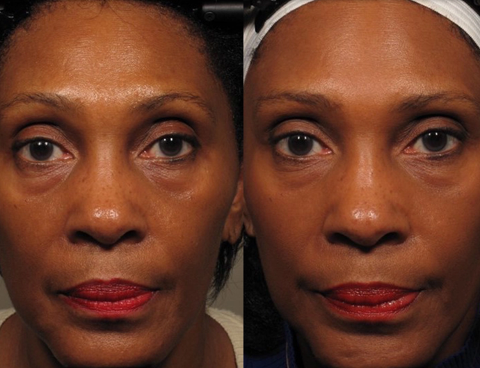 Before and after facial yoga. *Image via Northwestern University.*