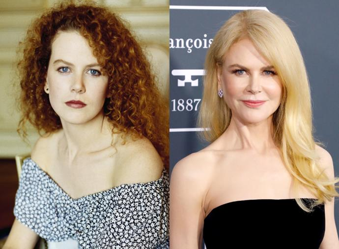 """**Nicole Kidman**<br><br>  [Nicole Kidman's before-and-after](https://www.harpersbazaar.com.au/beauty/australian-actresses-before-after-20135