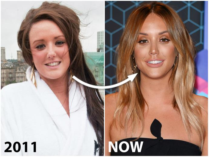 "There's clearly a lot more to **Charlotte Crosby**'s dramatic transformation than an OTT spray tan and veneers!  While the Geordie Shore star, 26, admits to having Botox, regular fillers to maintain her plumped pout and surgery to shrink her ""hook"" nose, experts believe the list could include even more extreme procedures, like an eye lift.  ""Surgery has made me feel so much more confident,"" says Char."