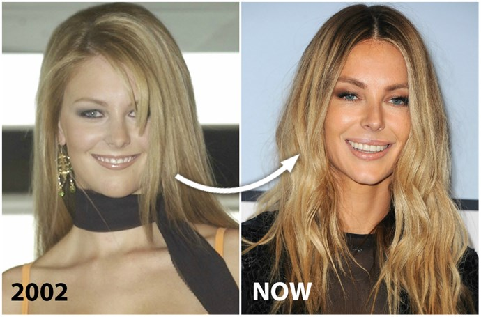 """Despite barely resembling her pre-Miss Universe self, **Jennifer Hawkins** insists her good looks are simply the result of exxy beauty products, healthy eating and water.  Still, the Australia's Next Top Model host, 32, isn't totally against surgery, reasoning that it's a case of """"each to their own"""" – and Dr Choroomi reckons she may have succumbed to injectables.  """"Her pout looks much fuller. Her lower lip in particular has been filled and [turned outward] at the sides,"""" he says of Jen, who's also been accused in the past of having a chin implant.  """"There is more volume in her cheeks from fillers or fat grafting, while her beautifully smooth forehead looks like the work of Botox."""""""